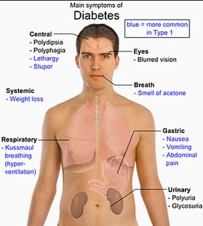 What is Diabetes? What causes Diabetes?